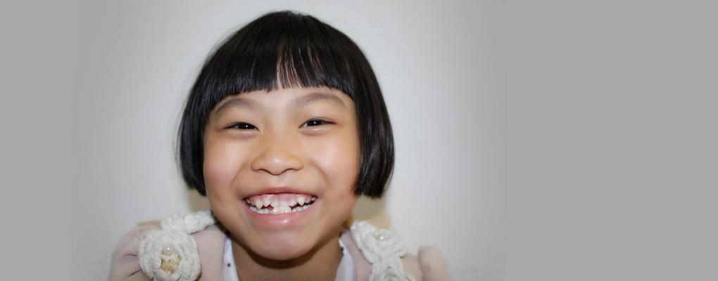オペレーション・ブレッシングは中国の8歳の少女に口蓋裂の無料手術を行いました。